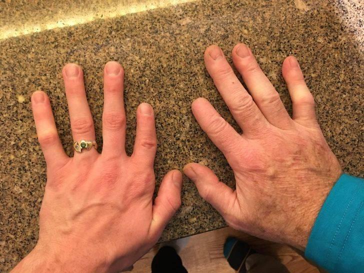 dad lost tip of finger