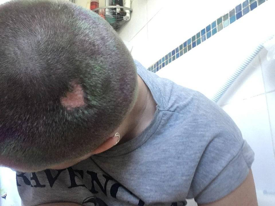 heart-shaped birthmark on head
