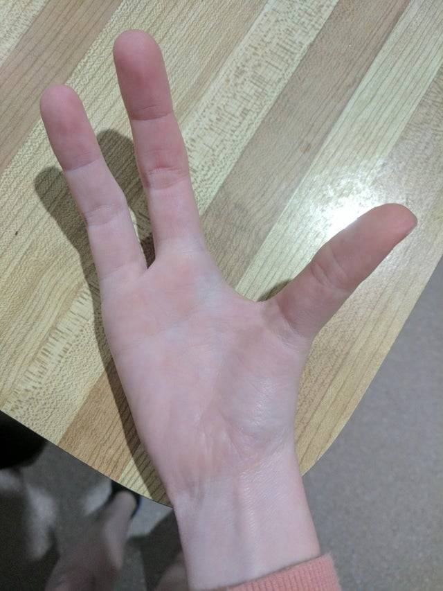 hand with three fingers